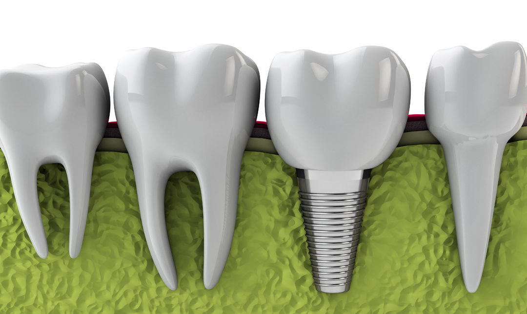 Who Is a Good Candidate for Dental Implants?