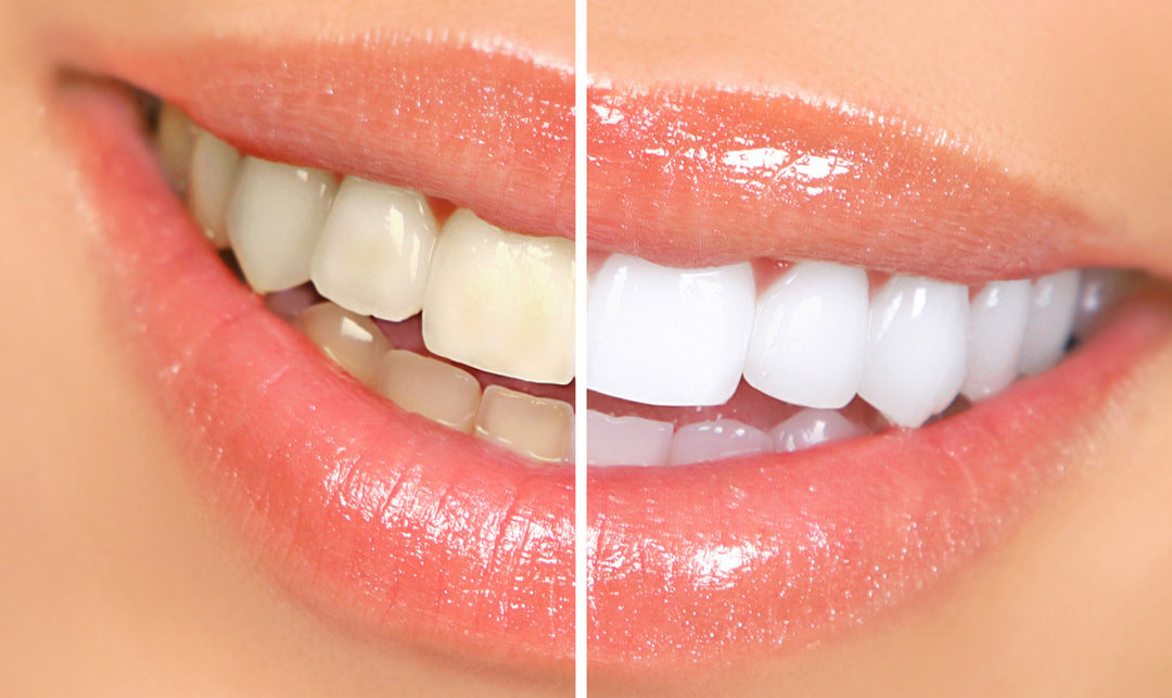 Teeth Whitening Dentist in Clarksville