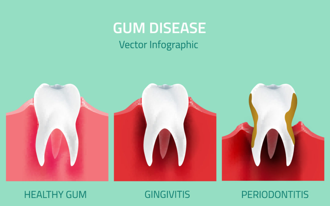 what is gum disease gingivitis periodontitis