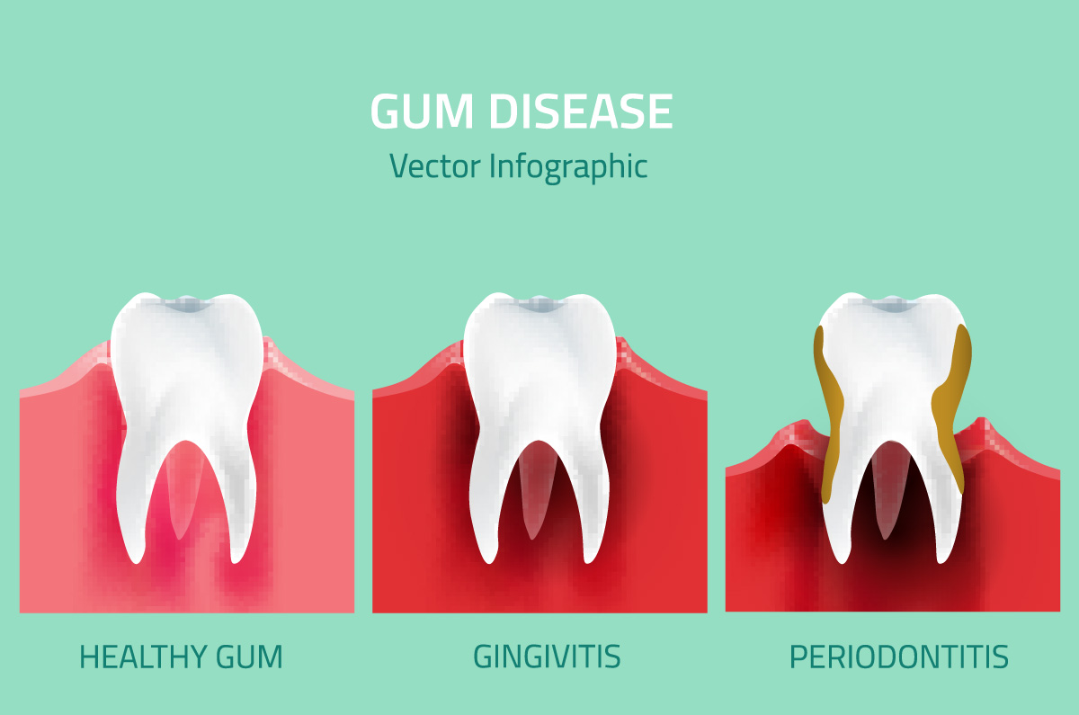 Consequences of poor hygiene: gum disease