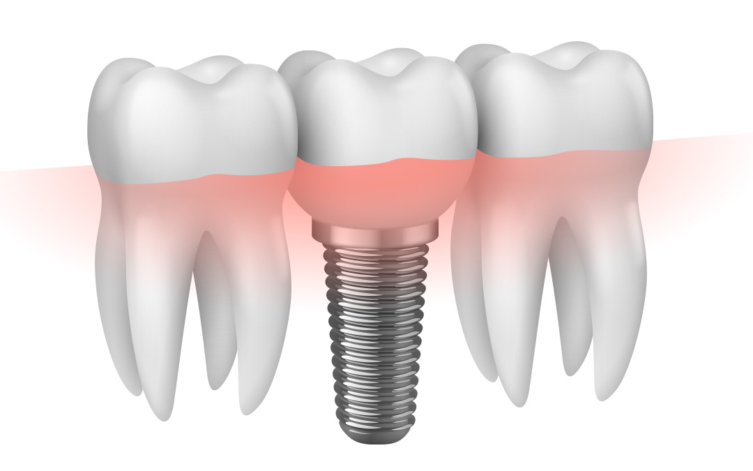 dental implant candidate