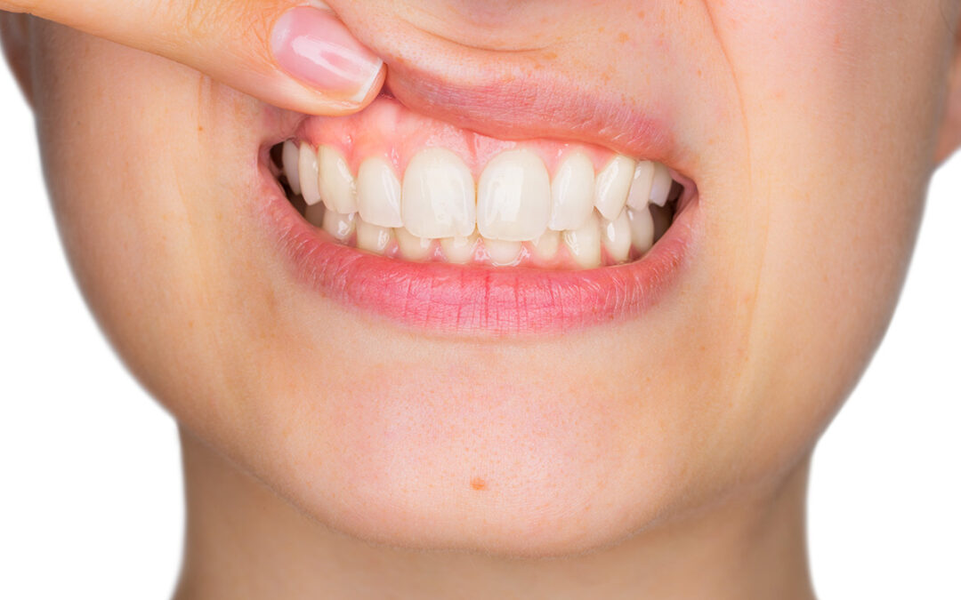 Why Gum Health Is So Important